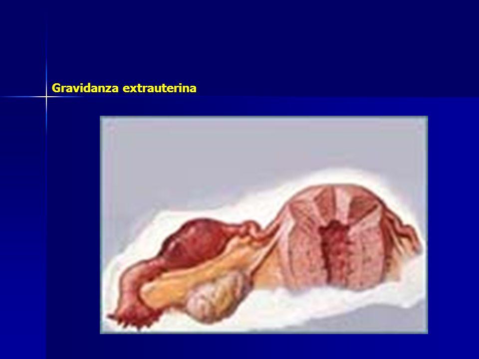 L uovo può annidarsi in qualunque tratto della tuba; tuttavia è frequente la localizzazione ampollare che si verifica nel 50% circa dei casi di gravidanza tubarica.