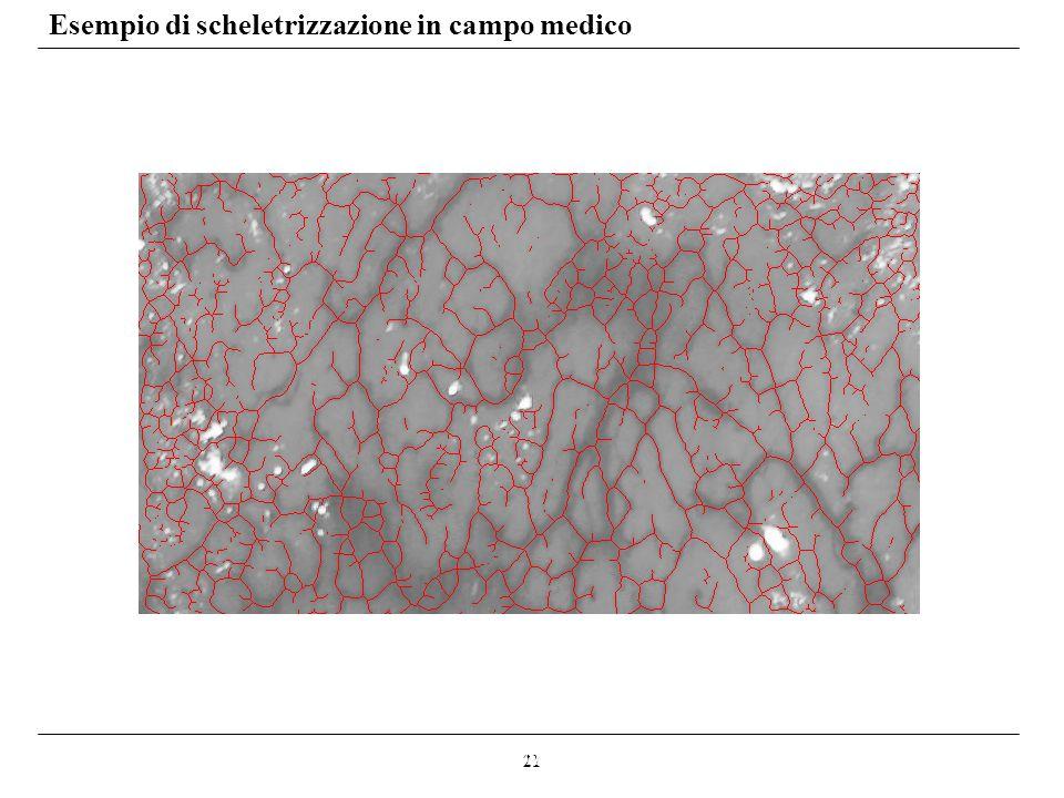 21 Esempio di scheletrizzazione in campo medico Sistema automatico di localizzazione dei vasi sanguigni