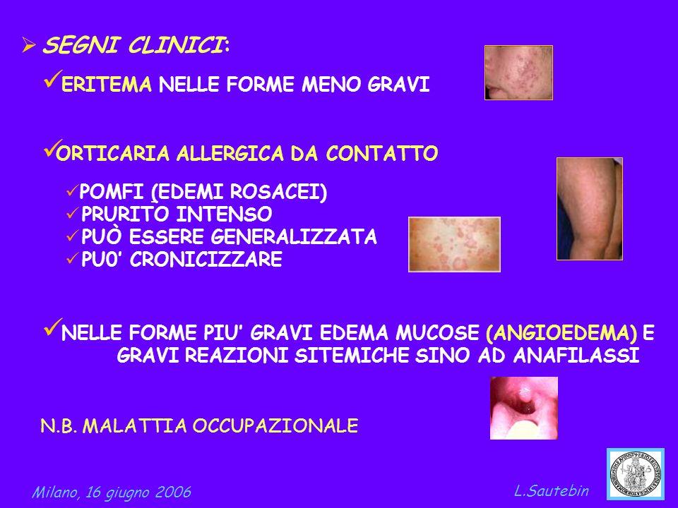 SEGNI CLINICI: ORTICARIA ALLERGICA DA CONTATTO POMFI (EDEMI ROSACEI) PRURITO INTENSO PUÒ ESSERE GENERALIZZATA PU0 CRONICIZZARE Milano, 16 giugno 2006