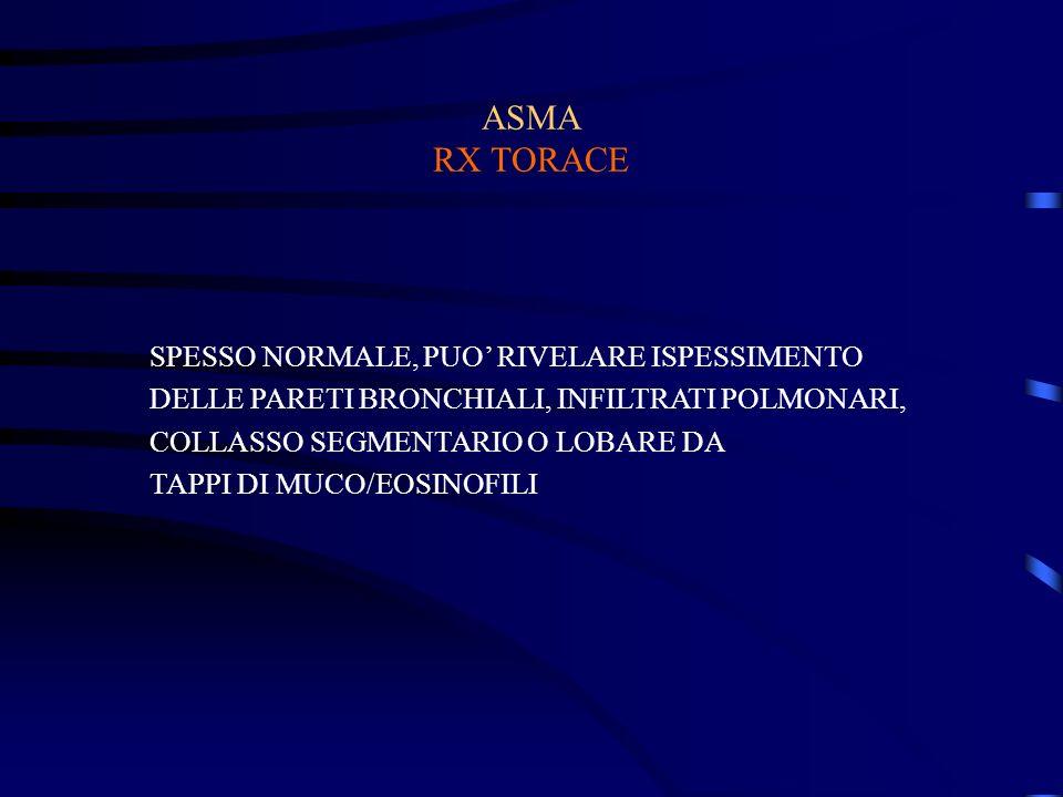 ASMA RX TORACE SPESSO NORMALE, PUO RIVELARE ISPESSIMENTO DELLE PARETI BRONCHIALI, INFILTRATI POLMONARI, COLLASSO SEGMENTARIO O LOBARE DA TAPPI DI MUCO/EOSINOFILI