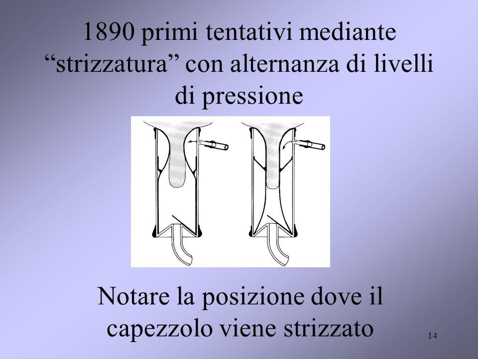 14 1890 primi tentativi mediante strizzatura con alternanza di livelli di pressione Notare la posizione dove il capezzolo viene strizzato