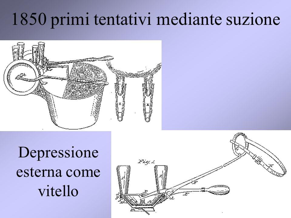 15 1850 primi tentativi mediante suzione Depressione esterna come vitello