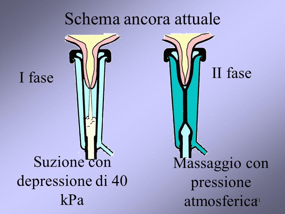 31 Schema ancora attuale Suzione con depressione di 40 kPa Massaggio con pressione atmosferica I fase II fase