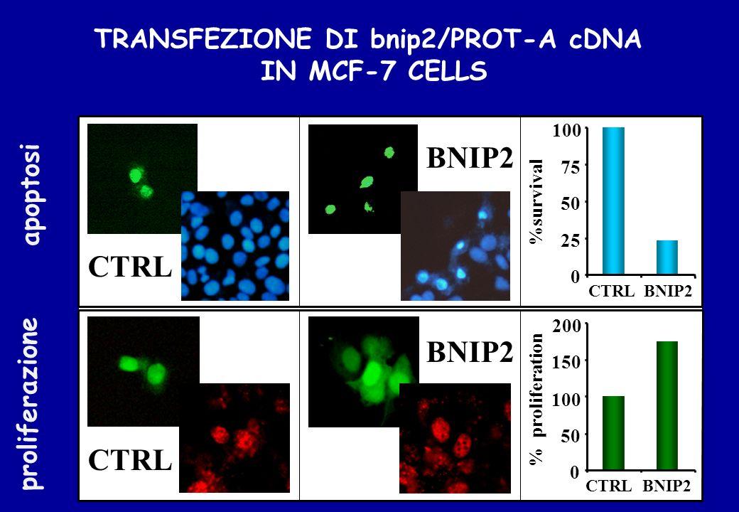 CTRL BNIP2 CTRL 100 75 50 25 BNIP2CTRL 200 150 100 50 CTRL BNIP2 %survival % proliferation 0 0 TRANSFEZIONE DI bnip2/PROT-A cDNA IN MCF-7 CELLS apopto