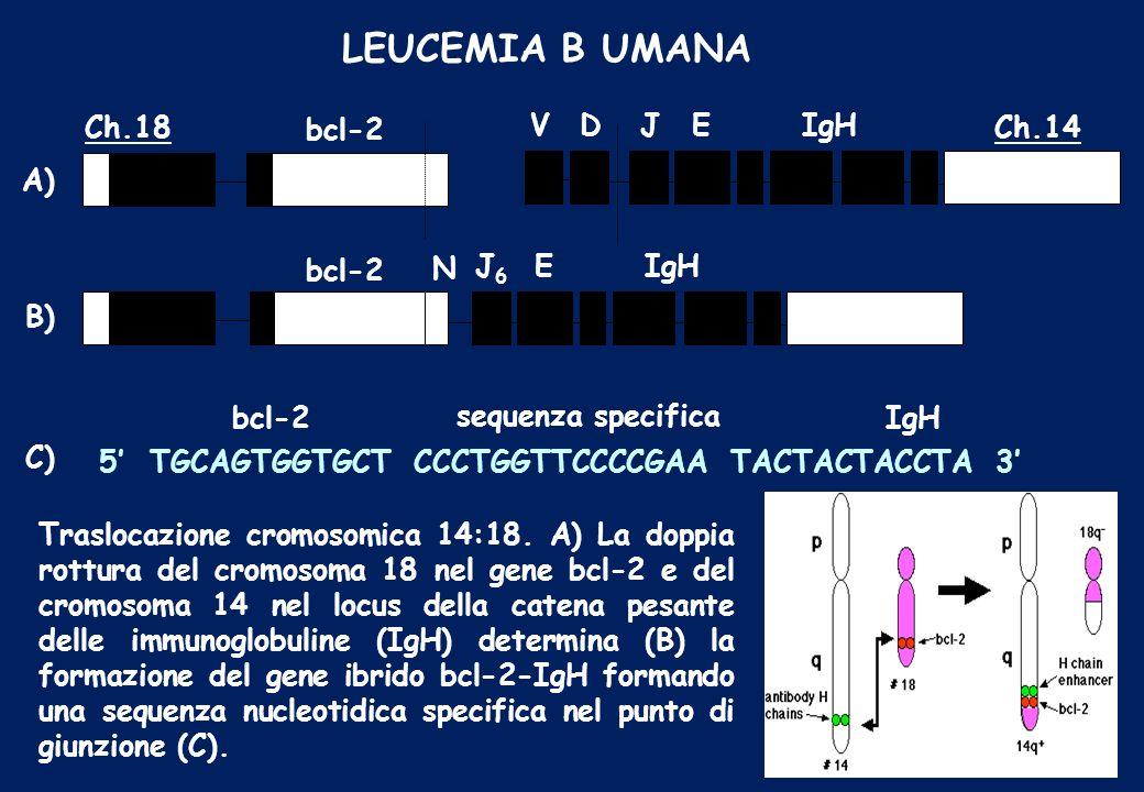 LEUCEMIA B UMANA Traslocazione cromosomica 14:18. A) La doppia rottura del cromosoma 18 nel gene bcl-2 e del cromosoma 14 nel locus della catena pesan