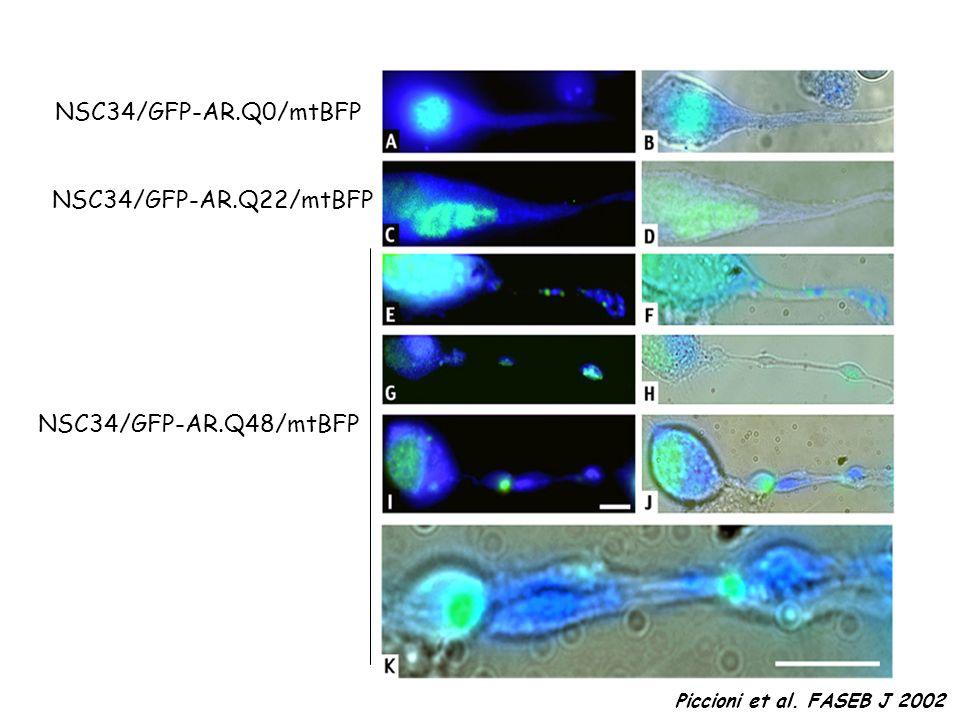 NSC34/GFP-AR.Q0/mtBFP NSC34/GFP-AR.Q22/mtBFP NSC34/GFP-AR.Q48/mtBFP Piccioni et al. FASEB J 2002