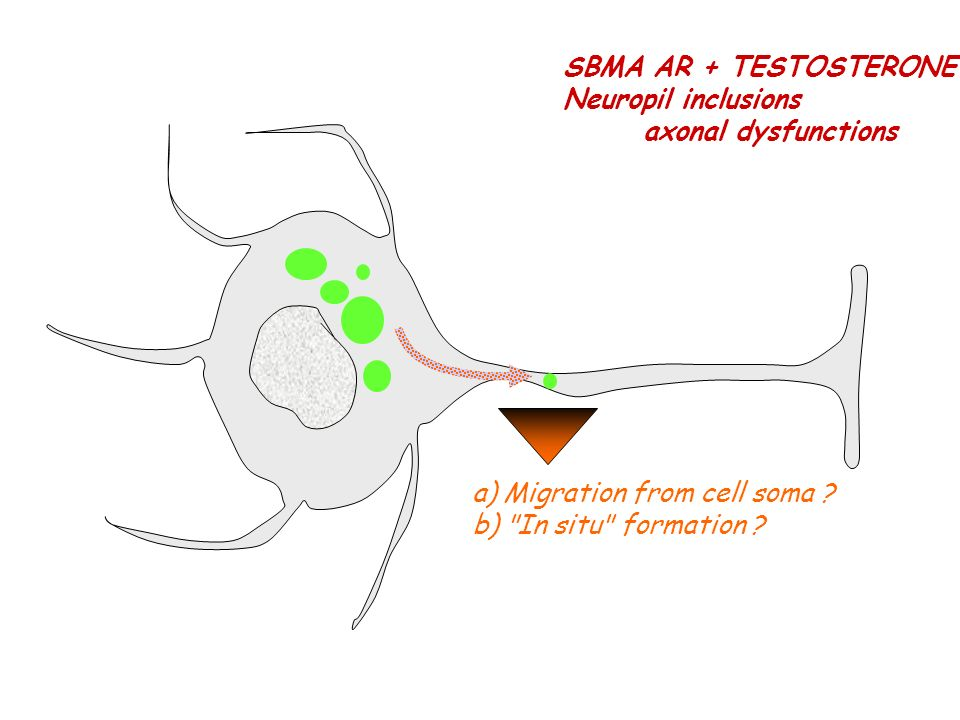 SBMA AR + TESTOSTERONE Neuropil inclusions axonal dysfunctions a) Migration from cell soma ? b)