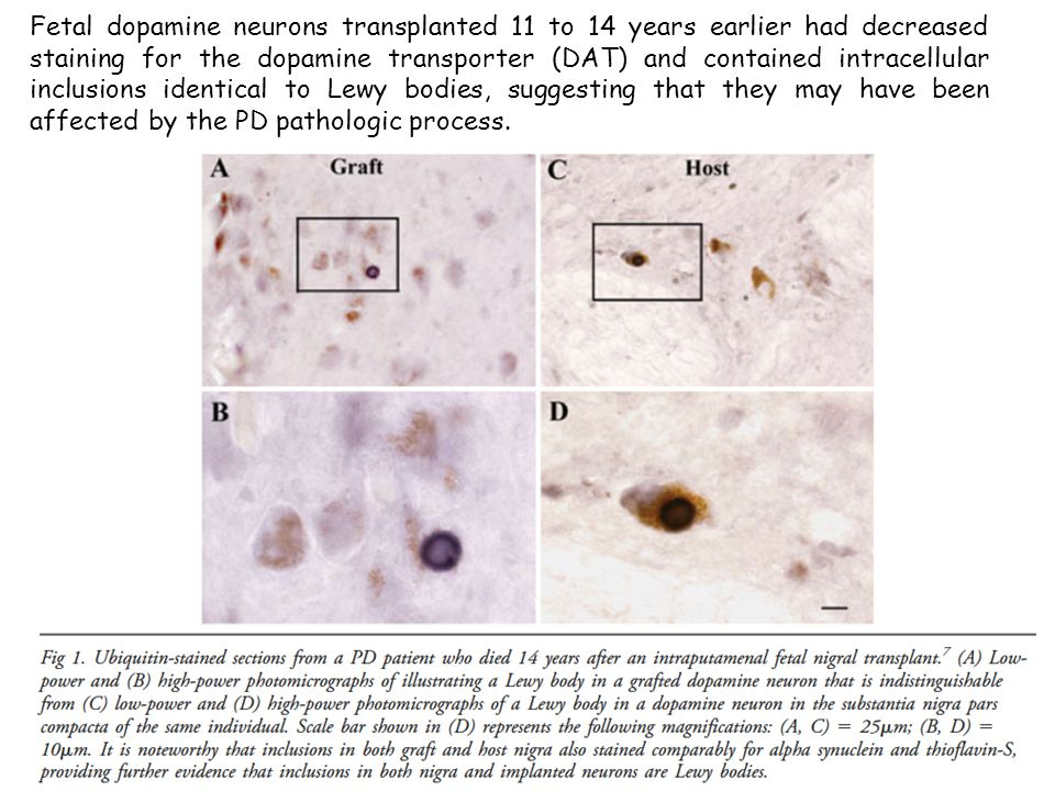 Fetal dopamine neurons transplanted 11 to 14 years earlier had decreased staining for the dopamine transporter (DAT) and contained intracellular inclu