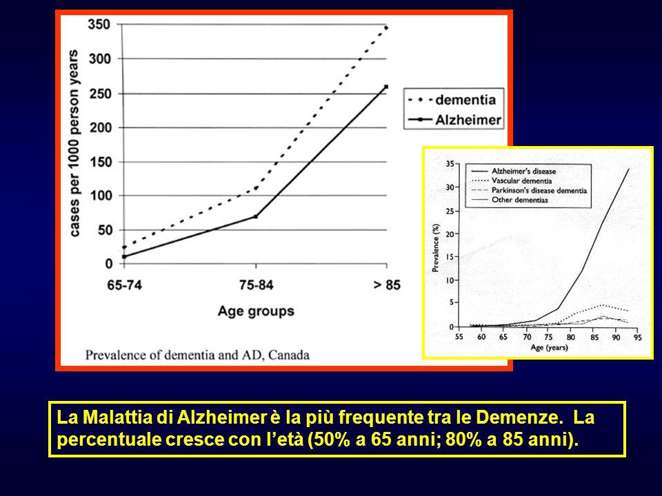 La Malattia di Alzheimer è la più frequente tra le Demenze. La percentuale cresce con letà (50% a 65 anni; 80% a 85 anni).