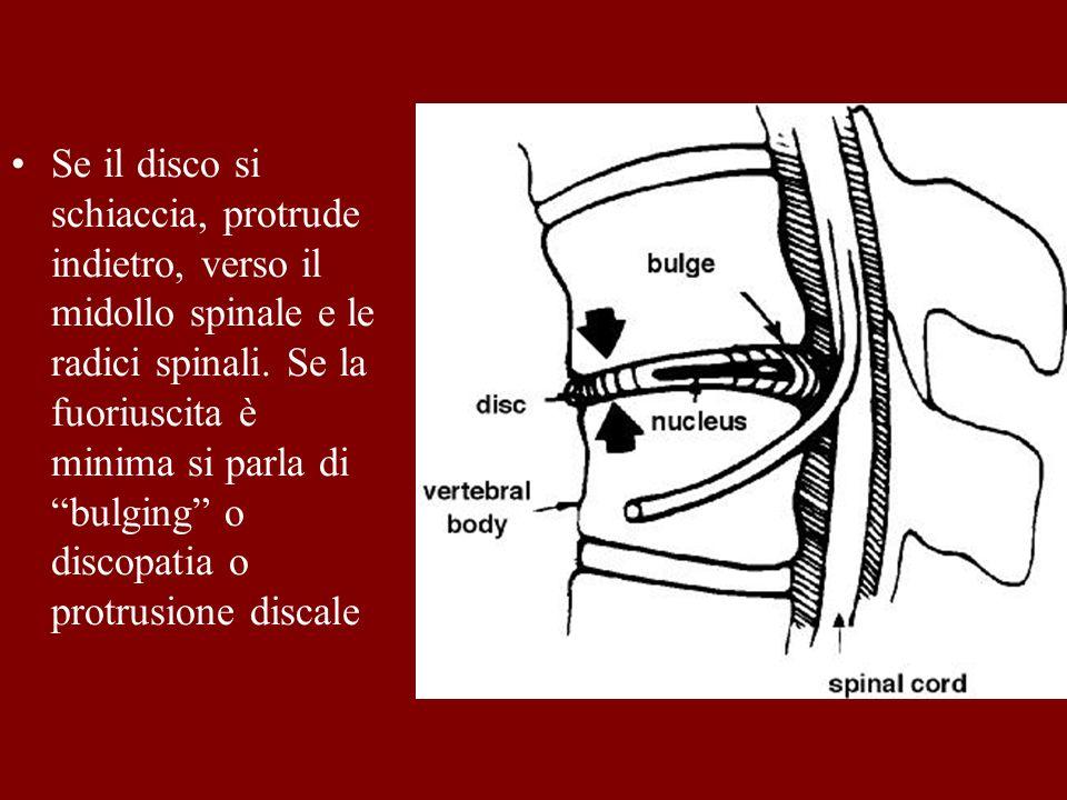 Se il disco si schiaccia, protrude indietro, verso il midollo spinale e le radici spinali. Se la fuoriuscita è minima si parla di bulging o discopatia