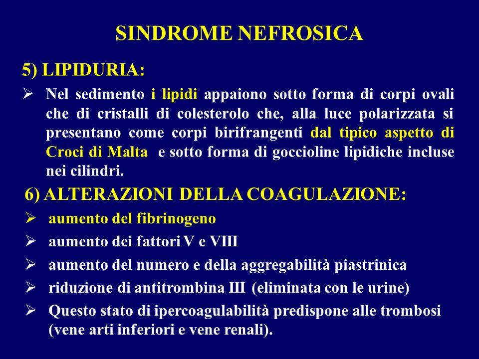 SINDROME NEFROSICA 5) LIPIDURIA: Nel sedimento i lipidi appaiono sotto forma di corpi ovali che di cristalli di colesterolo che, alla luce polarizzata