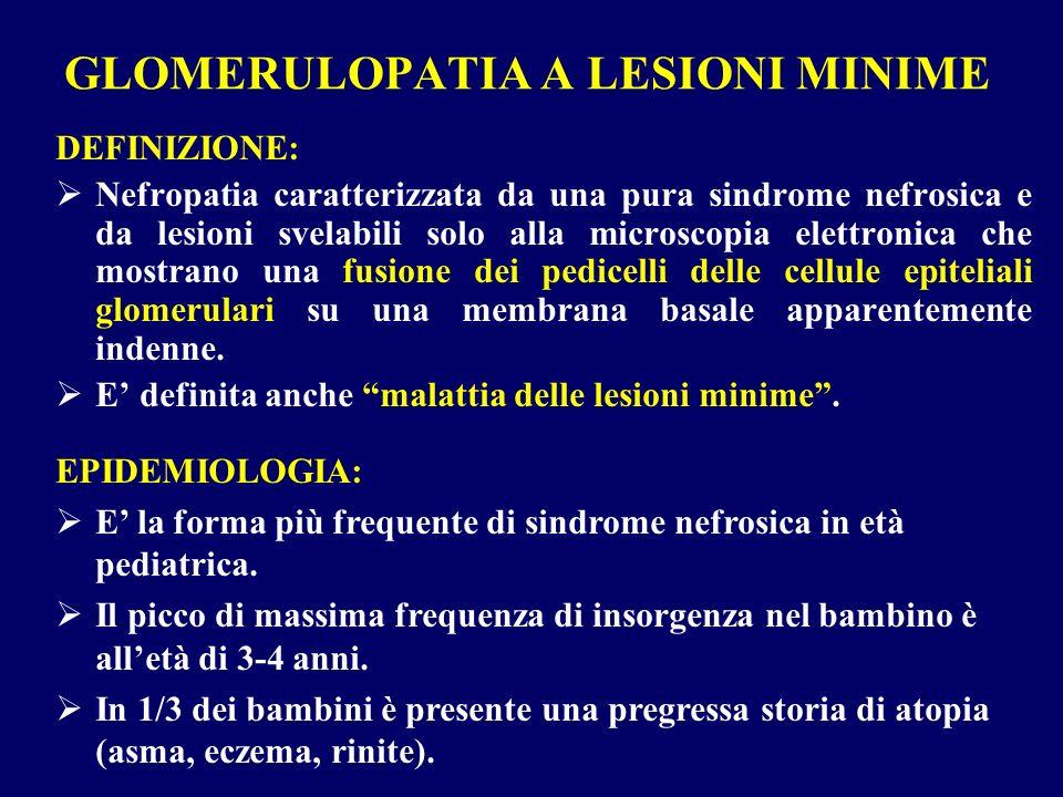 GLOMERULOPATIA A LESIONI MINIME DEFINIZIONE: Nefropatia caratterizzata da una pura sindrome nefrosica e da lesioni svelabili solo alla microscopia ele