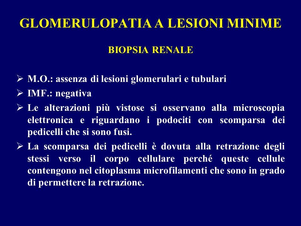 GLOMERULOPATIA A LESIONI MINIME BIOPSIA RENALE M.O.: assenza di lesioni glomerulari e tubulari IMF.: negativa Le alterazioni più vistose si osservano