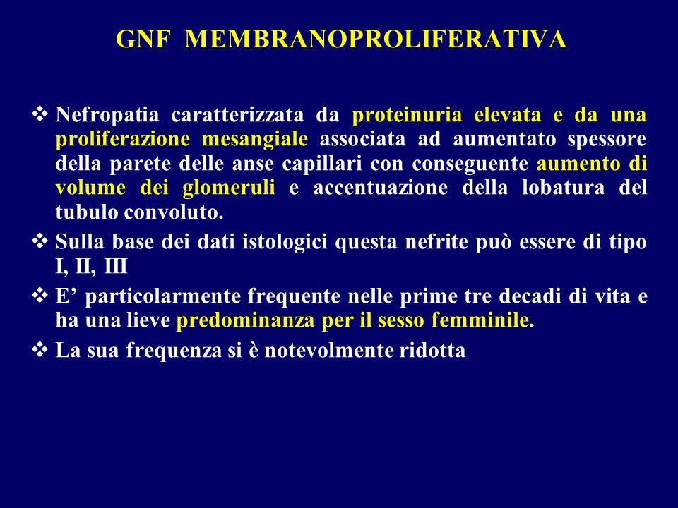 GNF MEMBRANOPROLIFERATIVA Nefropatia caratterizzata da proteinuria elevata e da una proliferazione mesangiale associata ad aumentato spessore della pa