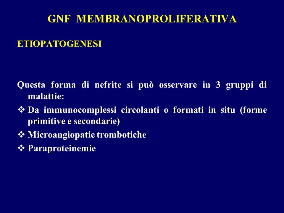 GNF MEMBRANOPROLIFERATIVA ETIOPATOGENESI Questa forma di nefrite si può osservare in 3 gruppi di malattie: Da immunocomplessi circolanti o formati in