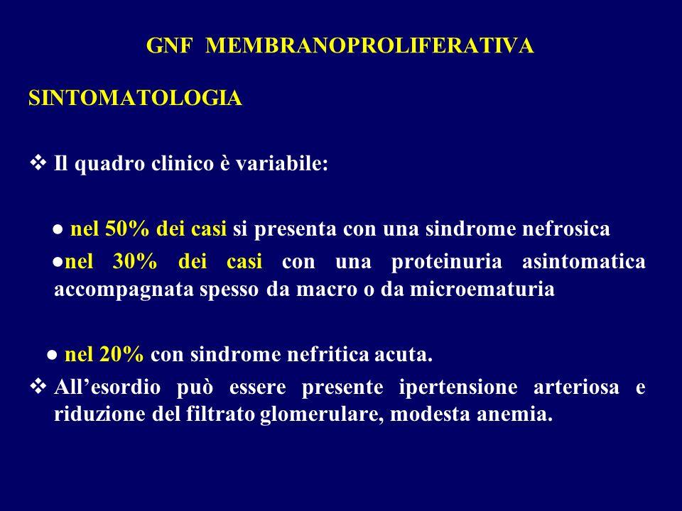 GNF MEMBRANOPROLIFERATIVA SINTOMATOLOGIA Il quadro clinico è variabile: nel 50% dei casi si presenta con una sindrome nefrosica nel 30% dei casi con u