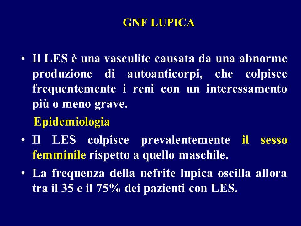 GNF LUPICA Il LES è una vasculite causata da una abnorme produzione di autoanticorpi, che colpisce frequentemente i reni con un interessamento più o m