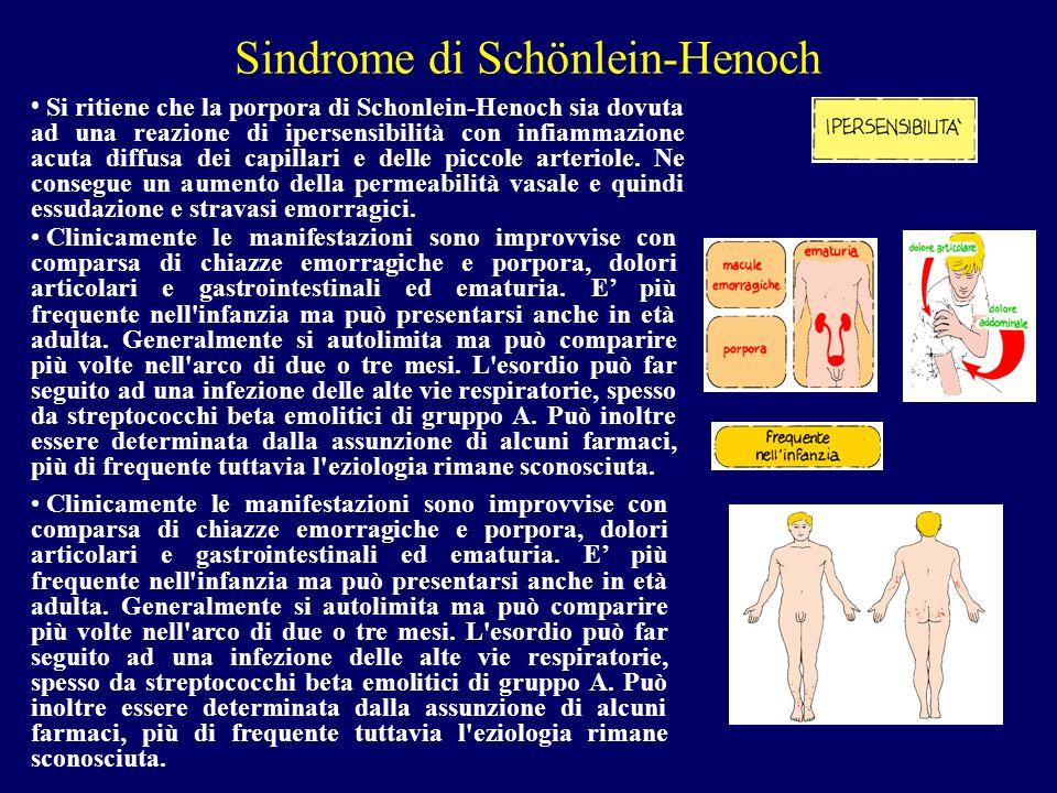 Sindrome di Schönlein-Henoch Si ritiene che la porpora di Schonlein-Henoch sia dovuta ad una reazione di ipersensibilità con infiammazione acuta diffu