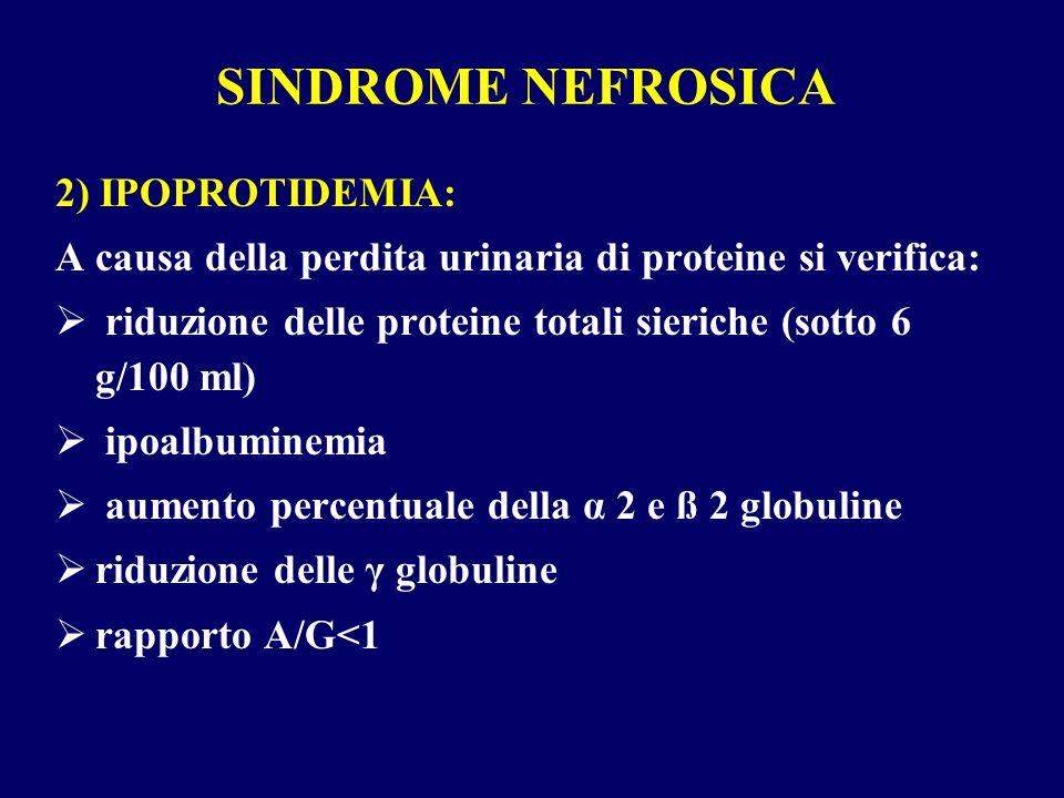 SINDROME NEFROSICA 2) IPOPROTIDEMIA: A causa della perdita urinaria di proteine si verifica: riduzione delle proteine totali sieriche (sotto 6 g/100 m