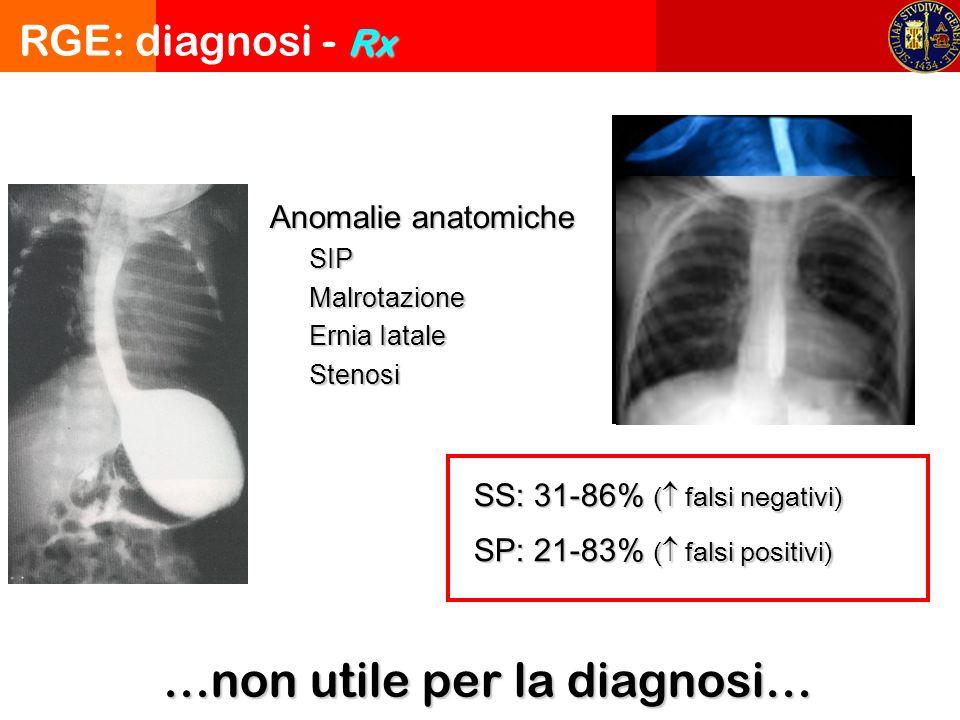 Rx RGE: diagnosi - Rx …non utile per la diagnosi… Anomalie anatomiche SIPMalrotazione Ernia Iatale Stenosi SS: 31-86% ( falsi negativi) SP: 21-83% ( falsi positivi)