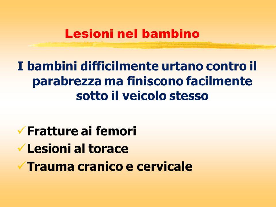 Lesioni nel bambino I bambini difficilmente urtano contro il parabrezza ma finiscono facilmente sotto il veicolo stesso Fratture ai femori Lesioni al
