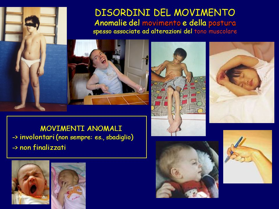 movimentopostura DISORDINI DEL MOVIMENTO Anomalie del movimento e della postura spesso associate ad alterazioni del tono muscolare MOVIMENTI ANOMALI -> involontari ( non sempre: es., sbadiglio ) -> non finalizzati