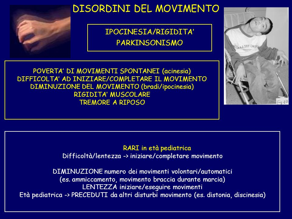DISORDINI DEL MOVIMENTO IPOCINESIA/RIGIDITA PARKINSONISMO POVERTA DI MOVIMENTI SPONTANEI (acinesia) DIFFICOLTA AD INIZIARE/COMPLETARE IL MOVIMENTO DIMINUZIONE DEL MOVIMENTO (bradi/ipocinesia) RIGIDITA MUSCOLARE TREMORE A RIPOSO RARI in età pediatrica Difficoltà/lentezza -> iniziare/completare movimento DIMINUZIONE numero dei movimenti volontari/automatici (es.