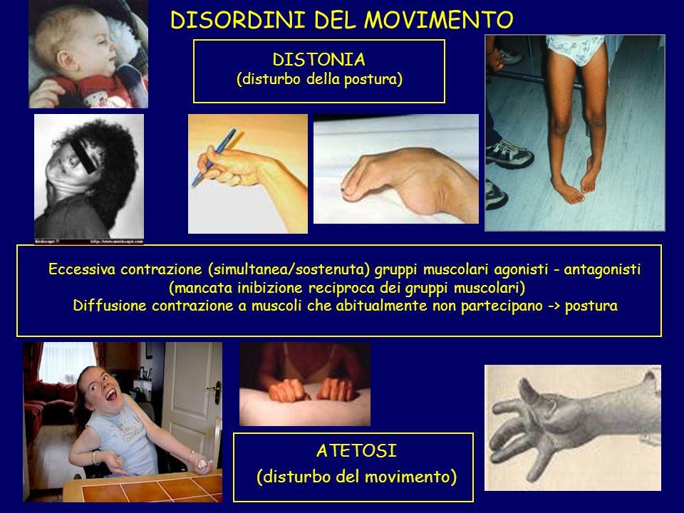 DISORDINI DEL MOVIMENTO DISTONIA (disturbo della postura) Eccessiva contrazione (simultanea/sostenuta) gruppi muscolari agonisti - antagonisti (mancata inibizione reciproca dei gruppi muscolari) Diffusione contrazione a muscoli che abitualmente non partecipano -> postura ATETOSI (disturbo del movimento)
