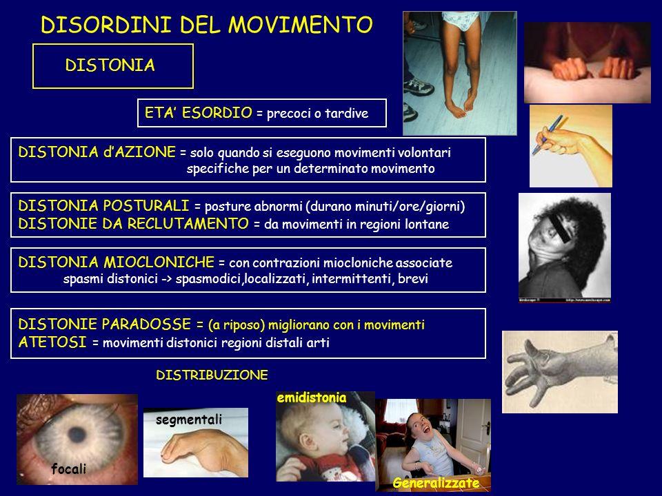 DISORDINI DEL MOVIMENTO DISTONIA DISTONIA dAZIONE = solo quando si eseguono movimenti volontari specifiche per un determinato movimento DISTONIA POSTU