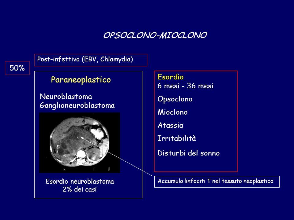 OPSOCLONO-MIOCLONO Paraneoplastico Post-infettivo (EBV, Chlamydia) Neuroblastoma Ganglioneuroblastoma 50% Esordio neuroblastoma 2% dei casi Esordio 6