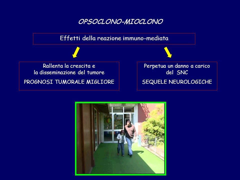 OPSOCLONO-MIOCLONO Effetti della reazione immuno-mediata Rallenta la crescita e la disseminazione del tumore PROGNOSI TUMORALE MIGLIORE Perpetua un danno a carico del SNC SEQUELE NEUROLOGICHE