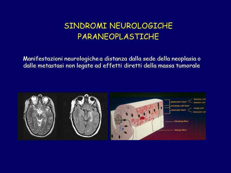 SINDROMI NEUROLOGICHE PARANEOPLASTICHE Manifestazioni neurologiche a distanza dalla sede della neoplasia o dalle metastasi non legate ad effetti diretti della massa tumorale