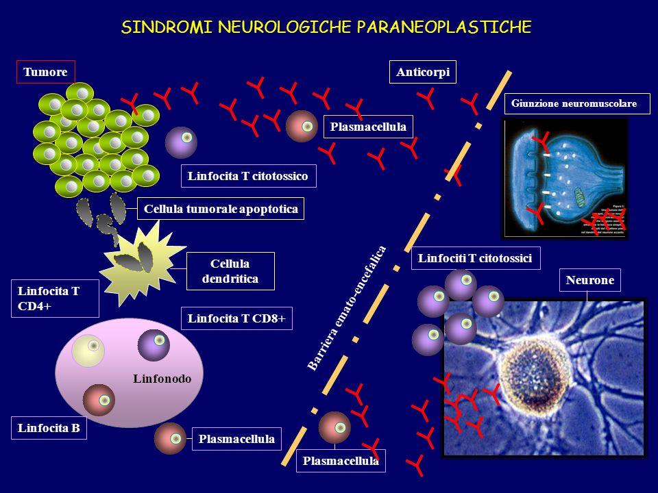 Linfonodo Cellula dendritica Linfocita T CD4+ Linfocita T CD8+ Linfocita T citotossico Linfocita B Plasmacellula Tumore Plasmacellula Linfociti T citotossici Neurone Giunzione neuromuscolare Barriera emato-encefalica Anticorpi SINDROMI NEUROLOGICHE PARANEOPLASTICHE Cellula tumorale apoptotica