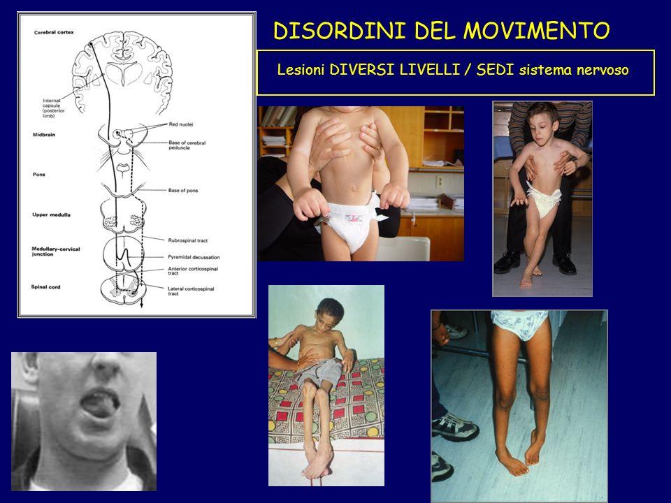 DISORDINI DEL MOVIMENTO Lesioni DIVERSI LIVELLI / SEDI sistema nervoso