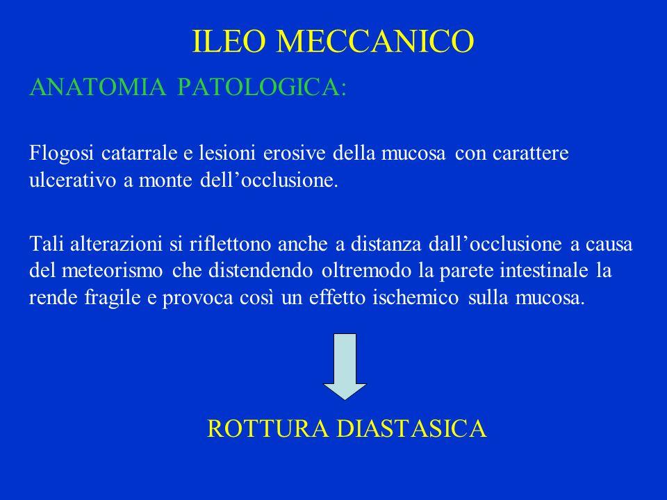 ILEO MECCANICO ANATOMIA PATOLOGICA: Flogosi catarrale e lesioni erosive della mucosa con carattere ulcerativo a monte dellocclusione. Tali alterazioni