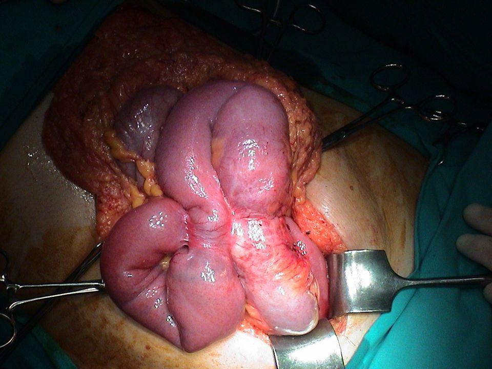 ILEO MECCANICO FISIOPATOLOGIA: Alterazione della perfusione intestinale: flusso ematico ridotto a livello della mucosa per dilatazione del viscere a monte dellocclusione e aumentato a livello muscolare per ipertrofia secondaria alle ripetute contrazioni.