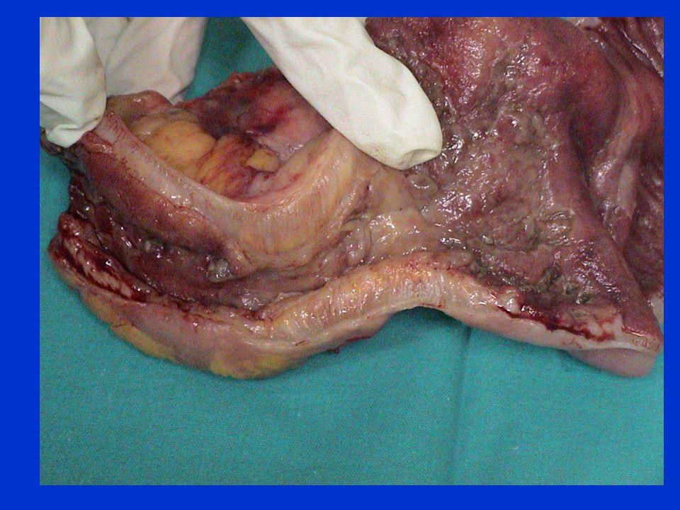 ETIOLOGIA ILEO PARALITICO I CAUSE INTRA ADDOMINALI INTRAPERITONEALI Laparotomia ( ilio post-operatorio ) Peritonite Insufficienza vascolare mesenterica EXTRAPERITONEALI Emorragia o flogosi retroperitoneali Pancreatite acuta Sindromi dolorose gravi ( colica renale )
