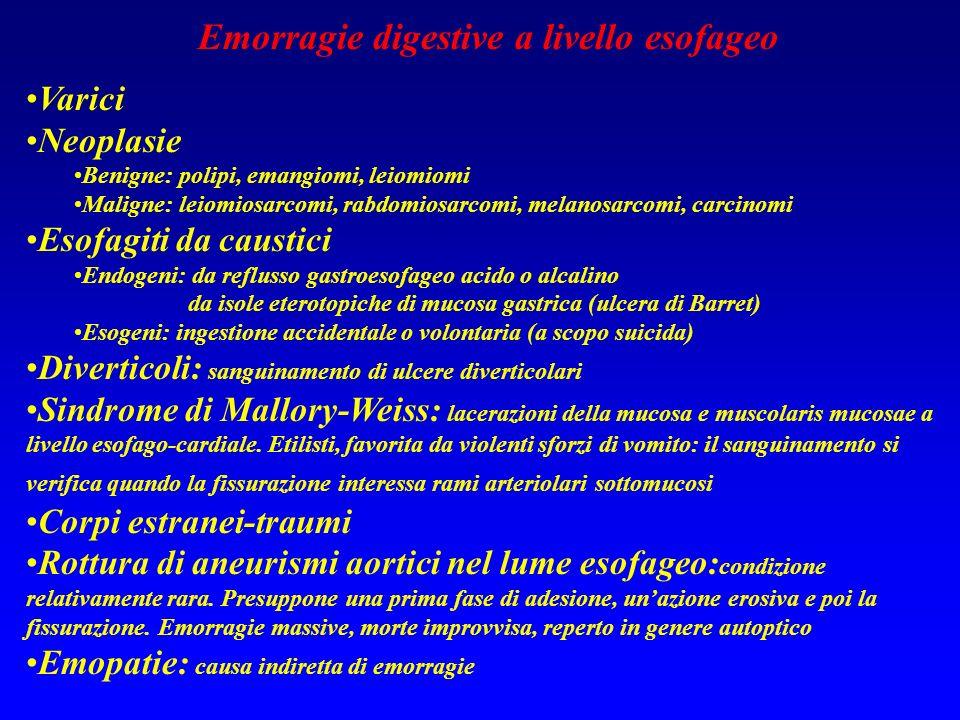 Emorragie digestive a livello esofageo Varici Neoplasie Benigne: polipi, emangiomi, leiomiomi Maligne: leiomiosarcomi, rabdomiosarcomi, melanosarcomi,