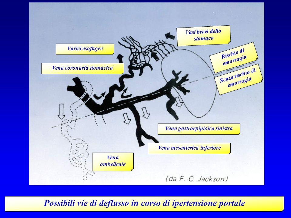 Possibili vie di deflusso in corso di ipertensione portale Vena mesenterica inferiore Vena ombelicale Vena gastroepiploica sinistra Senza rischio di e