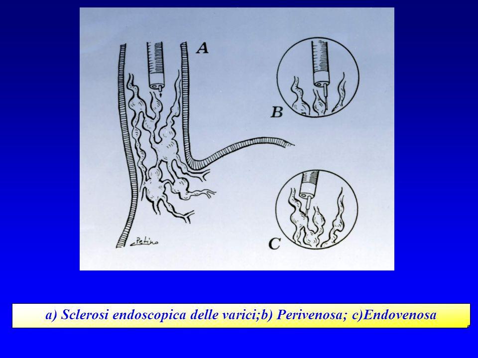 a) Sclerosi endoscopica delle varici;b) Perivenosa; c)Endovenosa