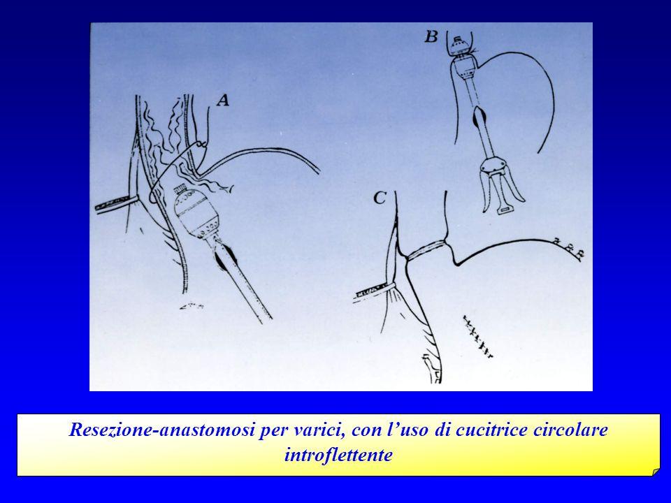 Resezione-anastomosi per varici, con luso di cucitrice circolare introflettente
