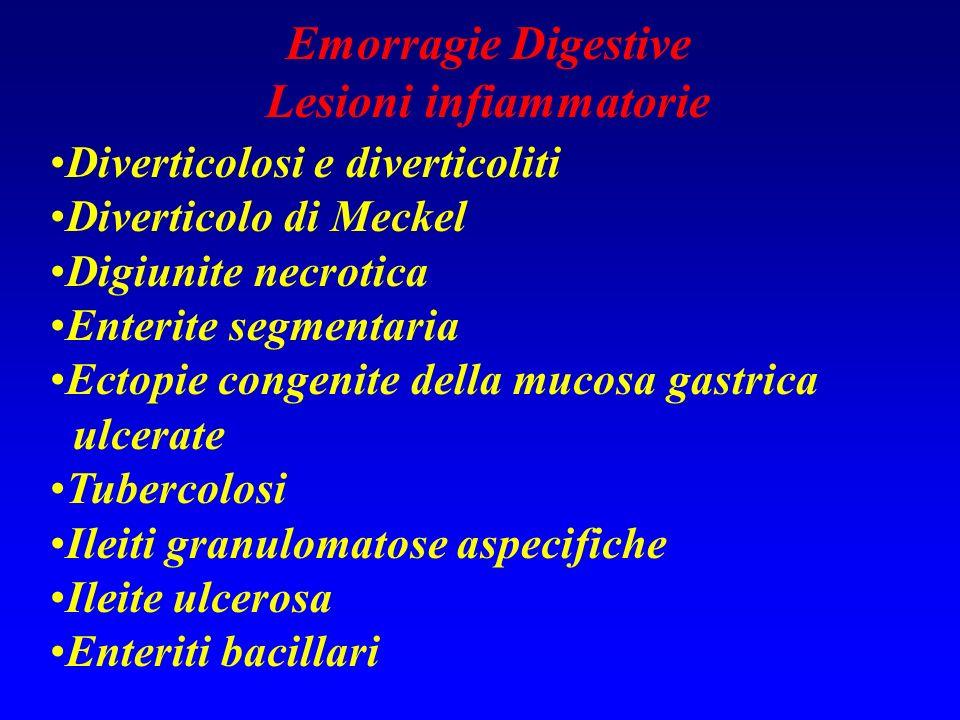 Emorragie Digestive Lesioni infiammatorie Diverticolosi e diverticoliti Diverticolo di Meckel Digiunite necrotica Enterite segmentaria Ectopie congeni