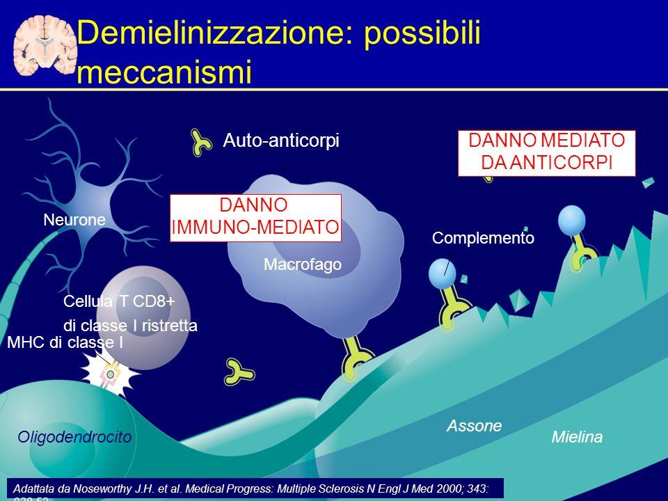 Demielinizzazione: possibili meccanismi Auto-anticorpi MHC di classe I Complemento Macrofago Oligodendrocito Cellula T CD8+ di classe I ristretta Adattata da Noseworthy J.H.