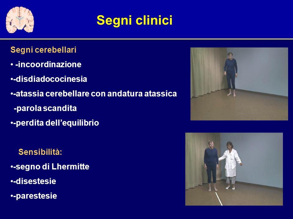 Segni cerebellari -incoordinazione -disdiadococinesia -atassia cerebellare con andatura atassica -parola scandita -perdita dellequilibrio Sensibilità: -segno di Lhermitte -disestesie -parestesie Segni clinici