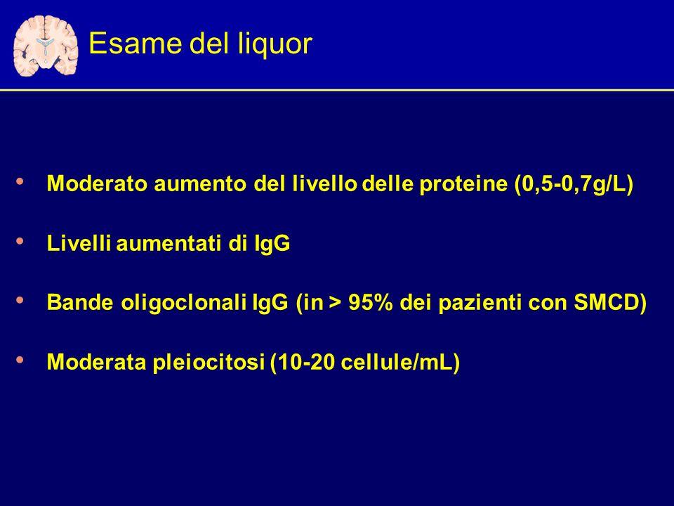 Esame del liquor Moderato aumento del livello delle proteine (0,5-0,7g/L) Livelli aumentati di IgG Bande oligoclonali IgG (in > 95% dei pazienti con SMCD) Moderata pleiocitosi (10-20 cellule/mL)
