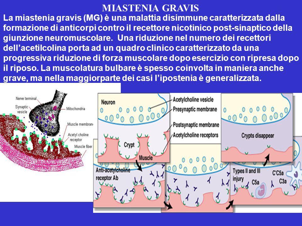 MIASTENIA GRAVIS La miastenia gravis (MG) è una malattia disimmune caratterizzata dalla formazione di anticorpi contro il recettore nicotinico post-sinaptico della giunzione neuromuscolare.