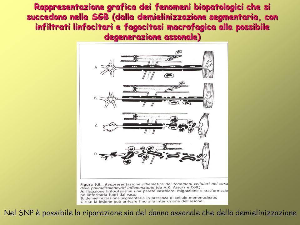 Rappresentazione grafica dei fenomeni biopatologici che si succedono nella SGB (dalla demielinizzazione segmentaria, con infiltrati linfocitari e fagocitosi macrofagica alla possibile degenerazione assonale) Nel SNP è possibile la riparazione sia del danno assonale che della demielinizzazione