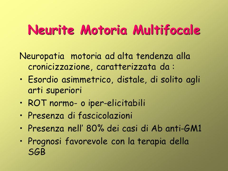Neurite Motoria Multifocale Neuropatia motoria ad alta tendenza alla cronicizzazione, caratterizzata da : Esordio asimmetrico, distale, di solito agli