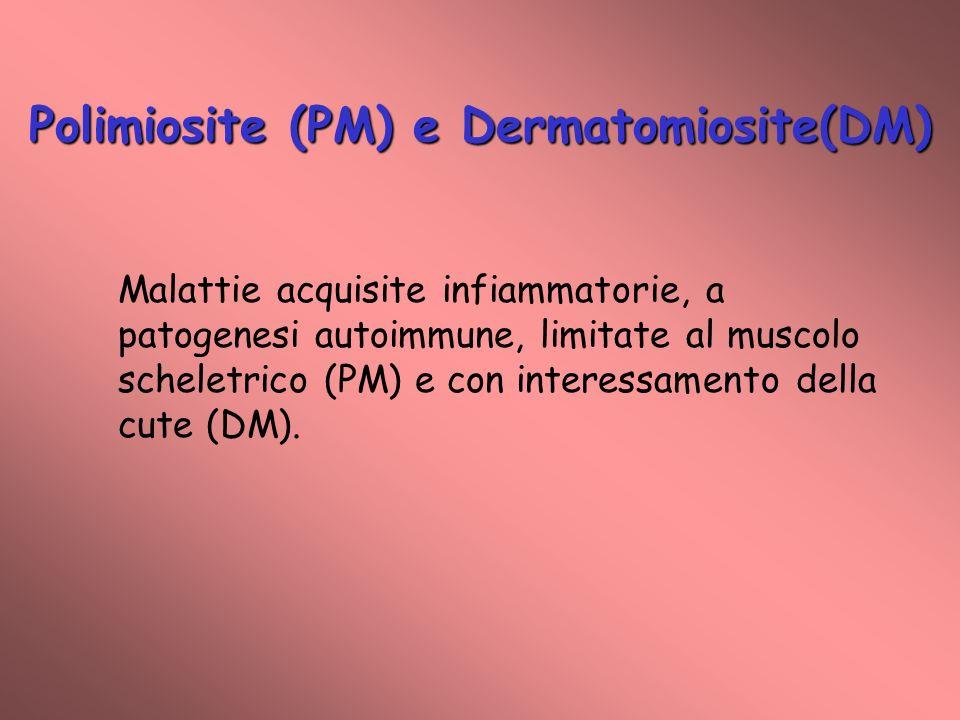 Polimiosite (PM) e Dermatomiosite(DM) Malattie acquisite infiammatorie, a patogenesi autoimmune, limitate al muscolo scheletrico (PM) e con interessamento della cute (DM).