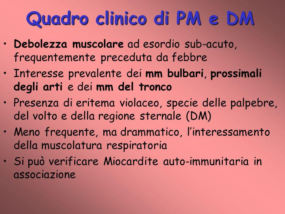 Quadro clinico di PM e DM Debolezza muscolare ad esordio sub-acuto, frequentemente preceduta da febbre Interesse prevalente dei mm bulbari, prossimali